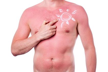 Was tun gegen Sonnenbrand - © Sedlacek - Fotolia.com